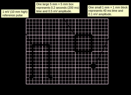 How to measure ECG boxes
