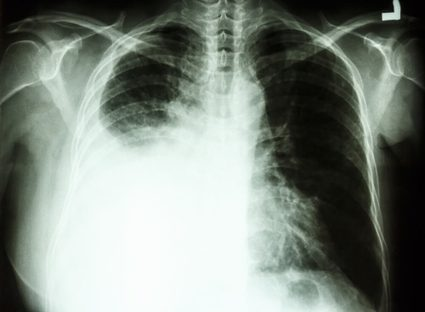 A chest xray with pleural effusion on the right side